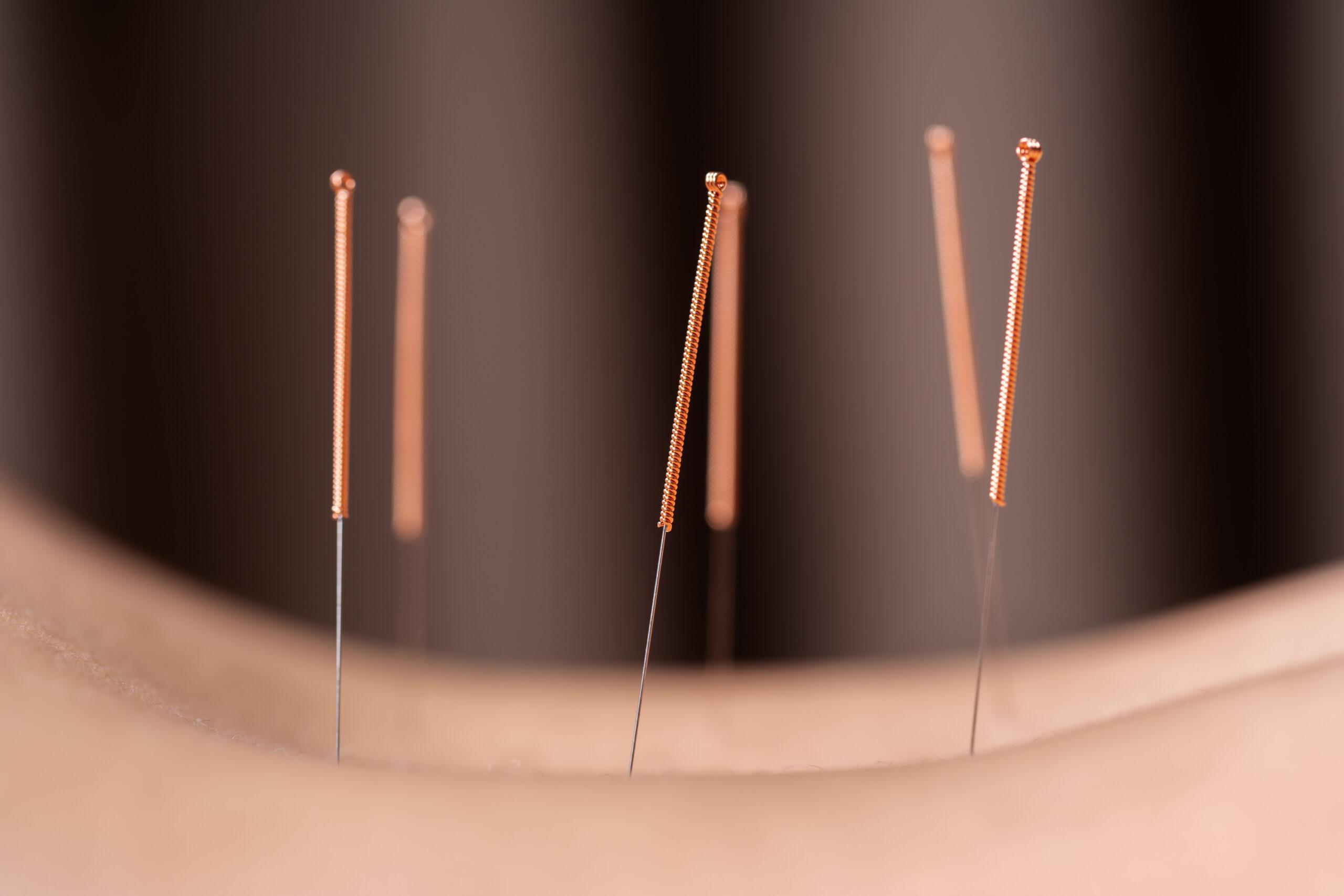 Akupunktiosta Tehokas Ja Nopea Apu Erilaisiin Kiputiloihin